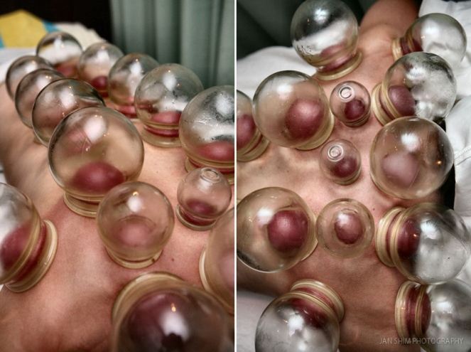 shimworld-cupping-therapy-photography